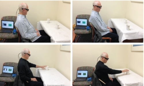 Protesi retinica con tecnologia argus II, l'uomo deve girare per spostare la telecamera degli occchiali.