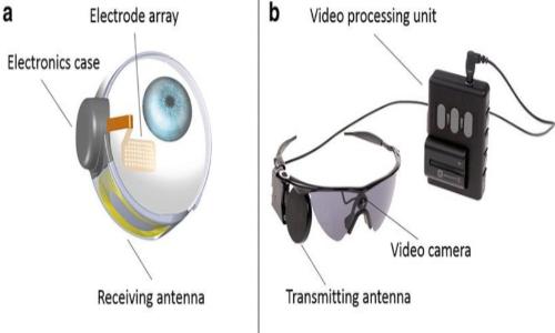 Protesi retinica Argus II e Aplha Aim