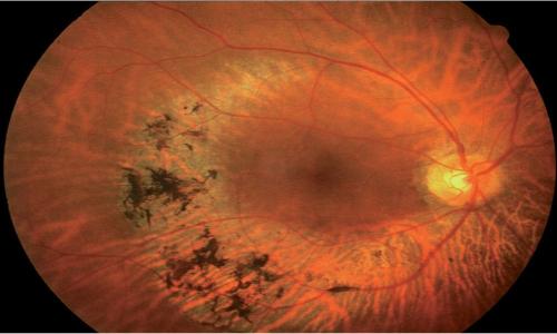La protesi retinica prima di essere impianta ha bisogno di un esame del fundus oculare.