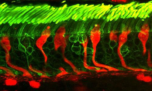 La protesi retinica viene impiantata sotto i bastoncelli colorati con immunofluorescenza