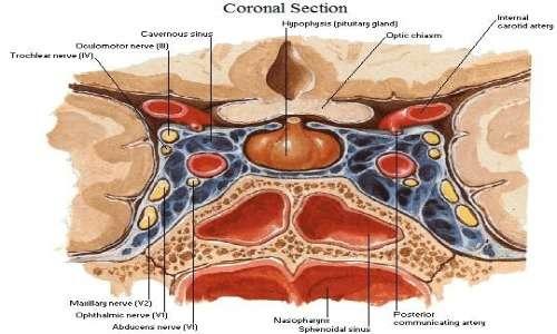 La sindrome di Cushing è una malattia che è causata dall'ipersecrezione di cortisolo o dall'assunzione di cortisone.