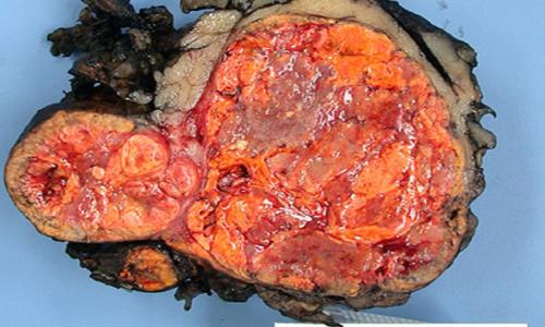 La sindrome di cushing primario è causata dall'ipersecrezione di cortisolo a livello surrenalico