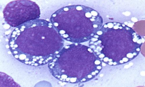 Il virus della mononucleosi si presenta con una sintomatologia tipica