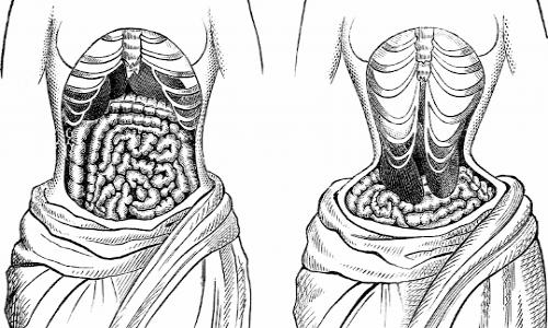 Quando fa male il fegato ? le donne con il corsetto non si accorgevano che si deformava il fegato