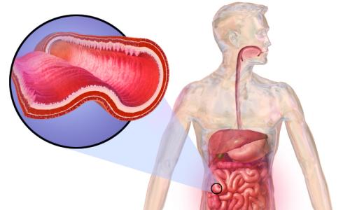 La malattia di Crohn è una malattia infiammatoria cronica che colpisce l'intestino.