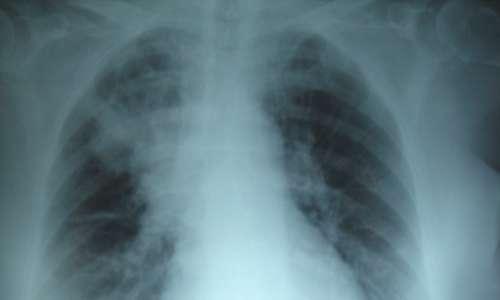 La fibrosi cistica colpisce i polmoni, ostruendo le vie aeree con un accumulo di muco.