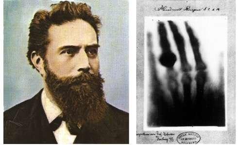 Foto di Rontgen e immagine ai raggi X della mano della moglie. raggi x scoperta. raggi x inventore. raggi x cosa sono.