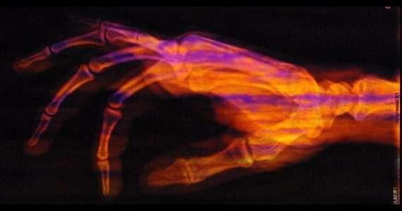 Raggi X. raggi x cosa sono. fotografia raggi x. raggi x inventore. raggi x scoperta