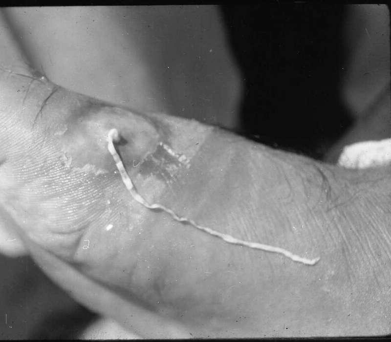 La femmina di Dracunculus medinensis migra verso il tessuto sottocutaneo degli arti inferiori.