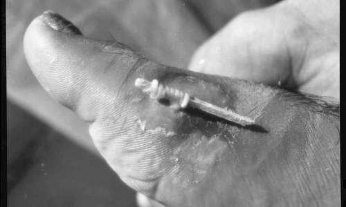 Dracunculus medinensis viene estratto, delicatamente, arrotolandolo su un bastoncino.