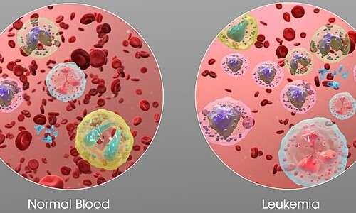 Differenza tra torrente circolatorio sano e leucemico.