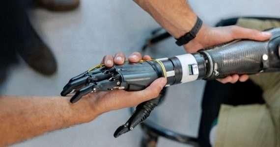 Gli elettrodi rilevano il movimento dei muscoli della parte superiore del braccio, provocando l'apertura o la chiusura di una mano robotica.