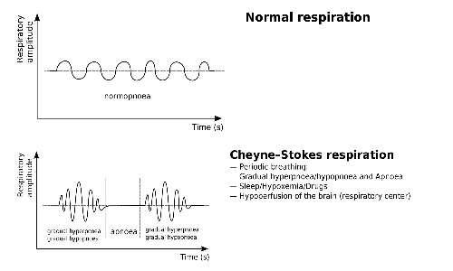 respiro-di-Cheyne-Stokes grafico respirazione normale e anomala