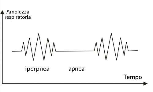 Il respiro del paziente alterna fasi di apnea a fasi di iperpnea.